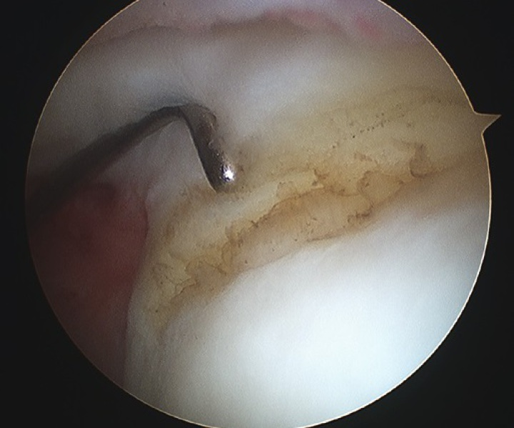 Shoulder Arthroscopy (Keyhole Surgery)